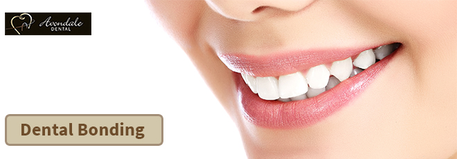 Dental Bonding Brampton